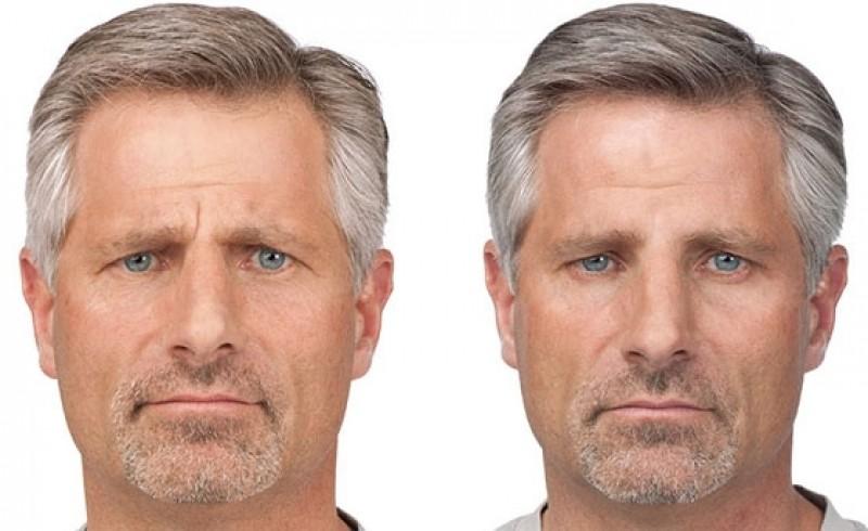 Busco por Tratamento Rugas na Testa Vila da Saúde - Tratamento de Rugas nos Olhos