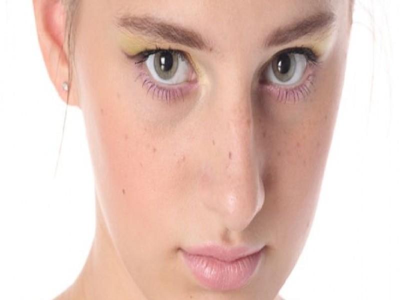 Clinica Dermatológica Tratamento de Acne Chácara Klabin - Clínica Dermatológica para Tratar Estrias