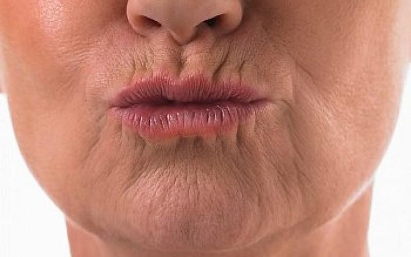 Clínica para Rejuvenescimento dos Lábios Indianópolis - Rejuvenescimento do Rosto