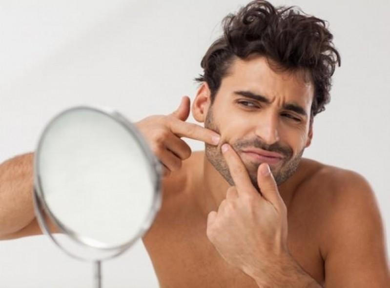 Clínica para Tratamento de Cicatriz de Acne Masculino Campo Belo - Tratamento de Cicatriz de Acne na Testa