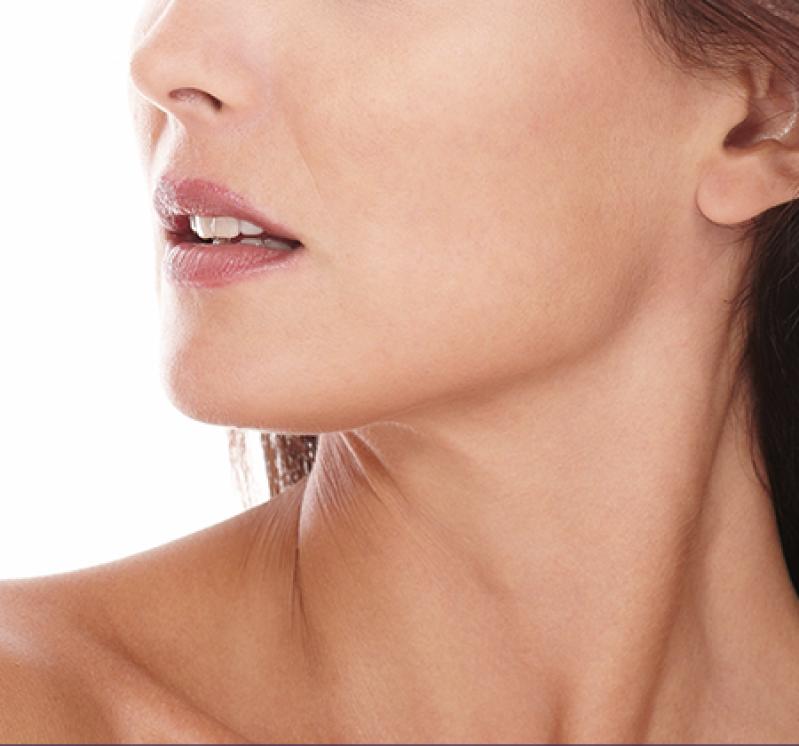 Clínica para Tratamento de Cicatriz de Acne na Testa Vila Mariana - Tratamento de Cicatriz de Acne Hormonal