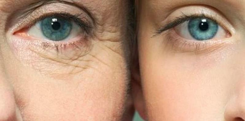Onde Fazer Tratamento de Rugas nos Olhos Campo Belo - Tratamento de Rugas nos Olhos