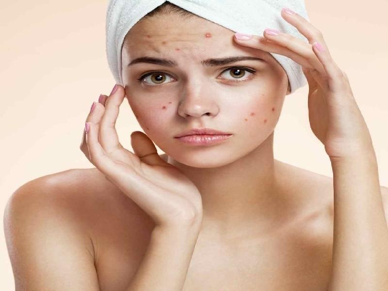 Preciso de Tratamento de Cicatriz de Acne a Laser Chácara Klabin - Tratamento de Cicatriz de Acne Hormonal