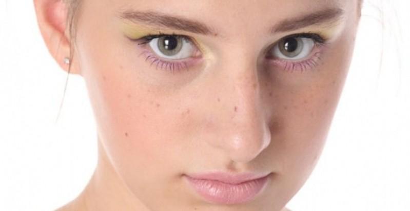 Preciso de Tratamento de Cicatriz de Acne Dermatologista Morumbi - Tratamento de Cicatriz de Acne Grave