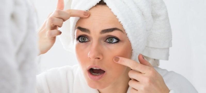 Preciso de Tratamento de Cicatriz de Acne na Testa Mooca - Tratamento de Cicatriz de Acne e Manchas