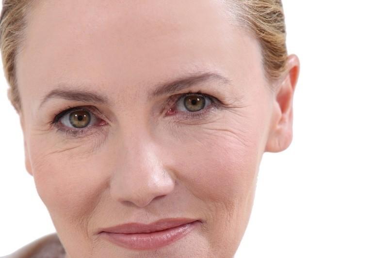 Preenchimento no Rosto em Especialista Vila Madalena - Preenchimento Facial para Olheiras