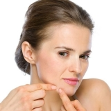 clínica para tratamento de cicatriz de acne hormonal Mooca