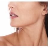 clínica para tratamento de cicatriz de acne na testa Butantã