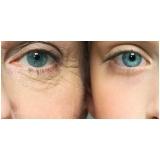 onde fazer tratamento de rugas nos olhos Brooklin