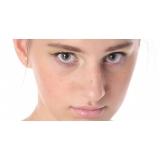 preciso de tratamento de cicatriz de acne dermatologista Jardins