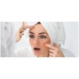 preciso de tratamento de cicatriz de acne na testa Vila Sônia