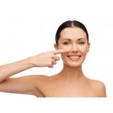 preenchimento facial com ácido hialurônico nariz Butantã