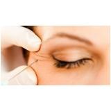preenchimento facial na área dos olhos em especialista Tatuapé