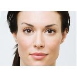 preenchimento facial para olheiras Butantã