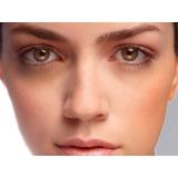 preenchimento facial para olheiras