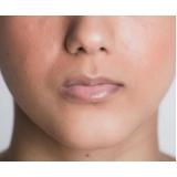 rejuvenescimento dos lábios com profissional Vila da Saúde