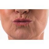 rejuvenescimento dos lábios