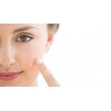 tratamento de cicatriz de acne a laser Tatuapé
