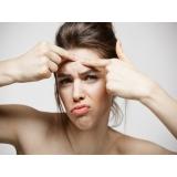 tratamento de cicatriz de acne e manchas Cidade Monções