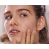 tratamento de cicatriz de acne em gestantes Jardins