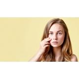 tratamento de cicatriz de acne hormonal Indianópolis