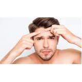 tratamento de cicatriz de acne para homens Pinheiros