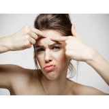tratamento de cicatriz de acne e manchas
