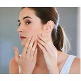 tratamento de cicatriz de acnes dermatologista Moema