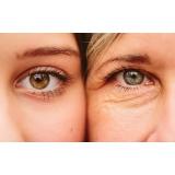 tratamento de rugas nos olhos Mooca