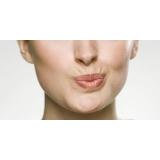 tratamento para rejuvenescimento dos lábios Vila Madalena