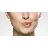 tratamento para rejuvenescimento dos lábios Chácara Klabin