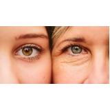 tratamento rugas área dos olhos em clínica Vila Prudente
