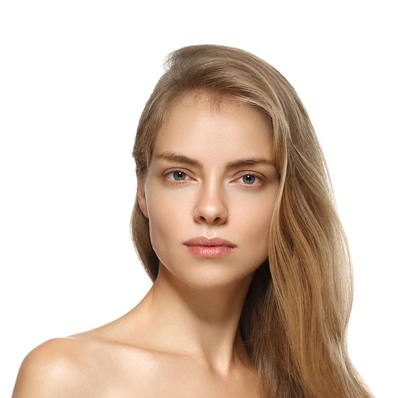 Tratamento de Cicatriz de Acne com Laser Ipiranga - Tratamento de Cicatriz de Acne na Testa
