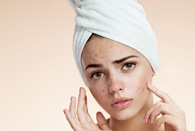 Tratamento de Cicatriz de Acne Dermatologista com Especialista Moema - Tratamento de Cicatriz de Acne Hormonal