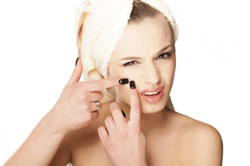 Tratamento de Cicatriz de Acne e Cravo Vila Olímpia - Tratamento de Cicatriz de Acne na Testa