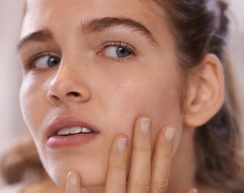 Tratamento de Cicatriz de Acne em Gestantes Cidade Monções - Tratamento de Cicatriz de Acne na Gestação
