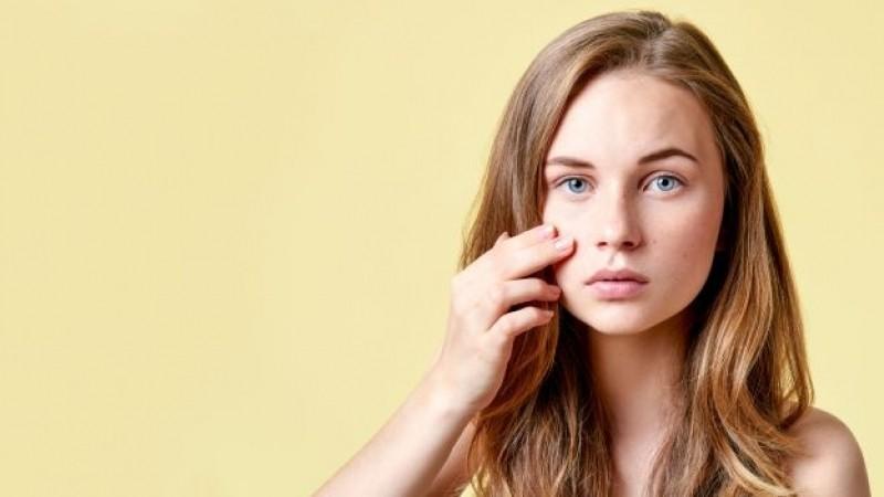 Tratamento de Cicatriz de Acne Hormonal Indianópolis - Tratamento de Cicatriz de Acne Hormonal