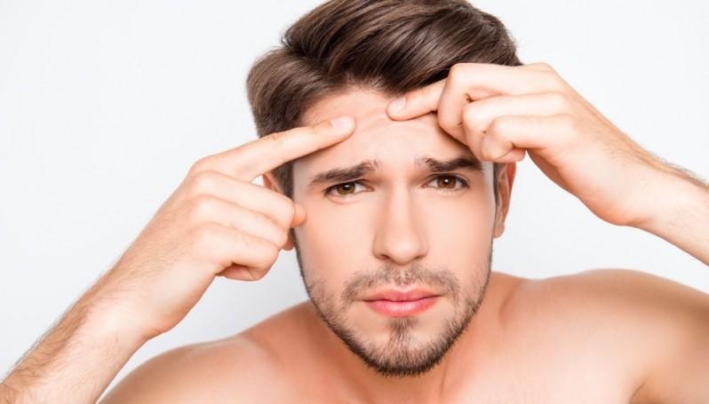 Tratamento de Cicatriz de Acne para Homens Mooca - Tratamento de Cicatriz de Acne na Gestação