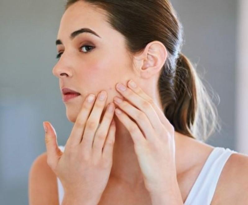Tratamento de Cicatriz de Acnes Dermatologista Vila da Saúde - Tratamento de Cicatriz de Acne na Testa