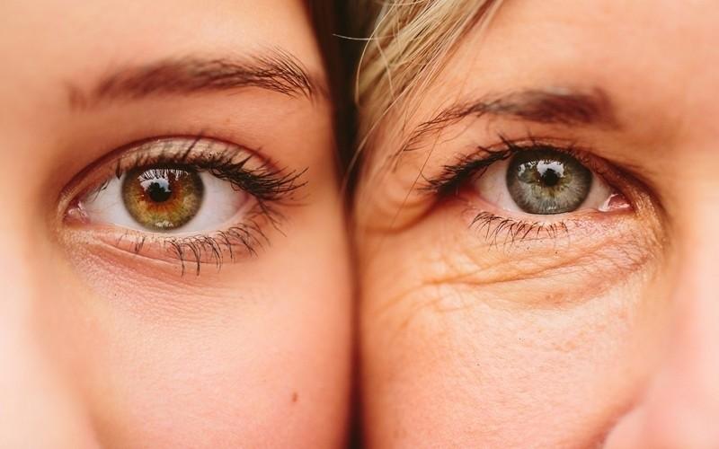 Tratamento de Rugas nos Olhos Vila Mariana - Tratamento de Rugas nos Olhos