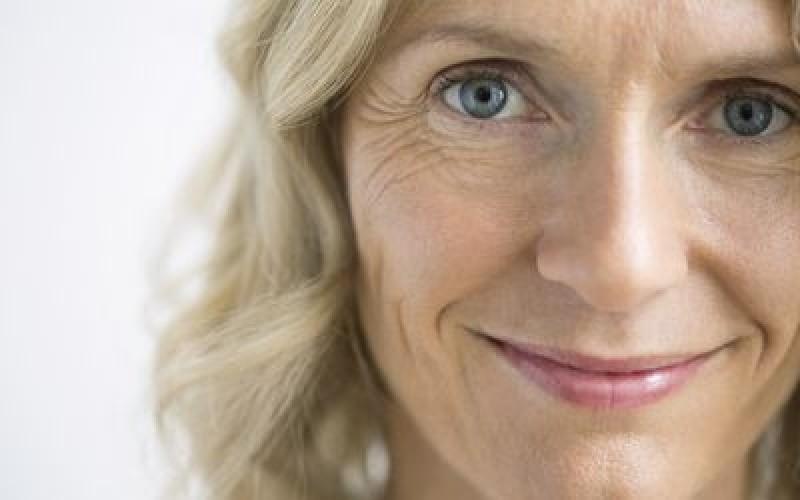Tratamento de Rugas Profundas Mooca - Tratamento de Rugas nos Olhos