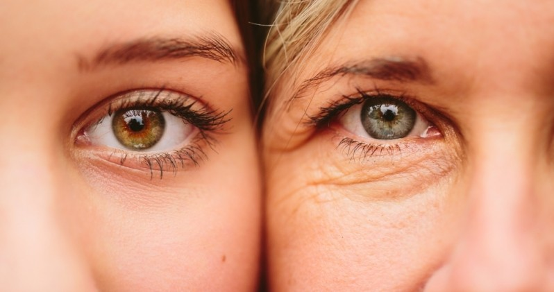 Tratamento Rugas área dos Olhos em Clínica Vila Prudente - Tratamento Rugas na Testa