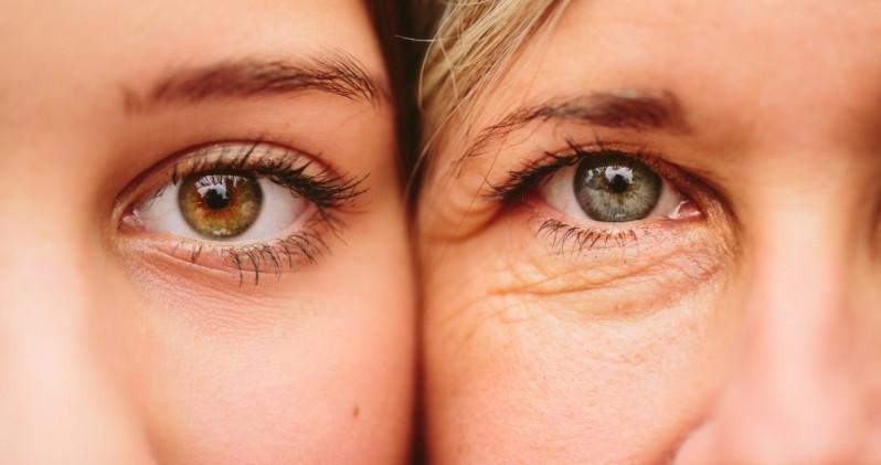 Tratamento Rugas Embaixo dos Olhos Butantã - Tratamento Rugas Abaixo dos Olhos