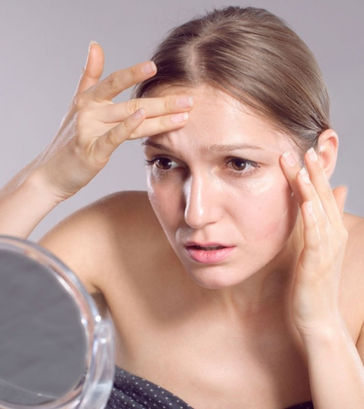 Tratamento Rugas na Testa Vila Madalena - Tratamento Rugas na Testa